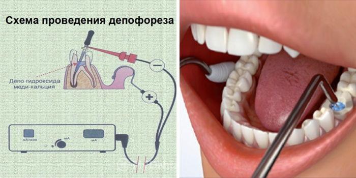 депофорез зубов