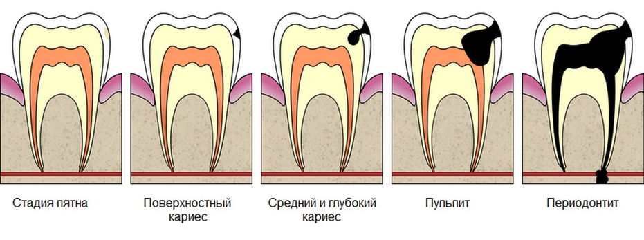 Как вылечить кисту зуба без операции