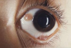 тератома глаза