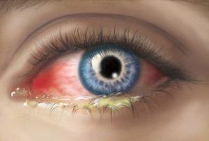 инфекция глаза